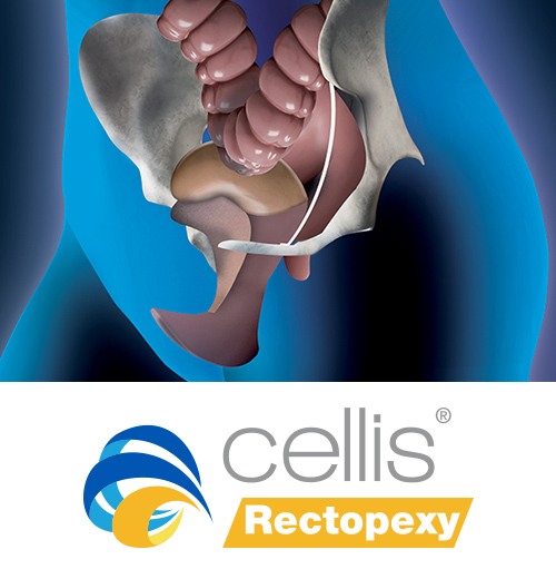 cellis rectopexy